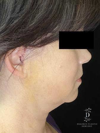 Digenis Refresh Lift: Patient 4 - After Image 3