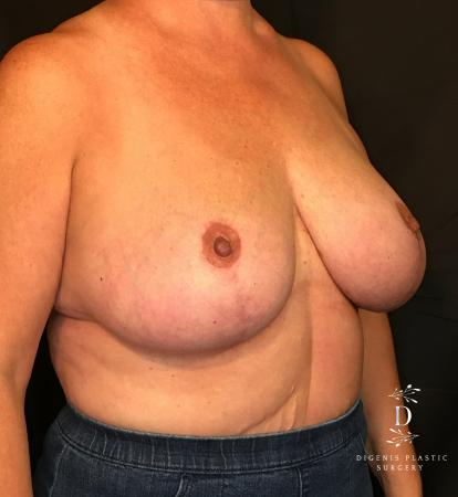 Breast Lift With Implants: Patient 4 - After Image 2