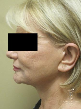 Facelift: Patient 14 - Before and After Image 5