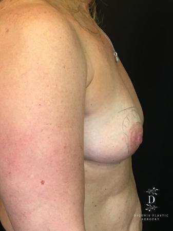 Breast Lift With Implants: Patient 8 - Before Image 3