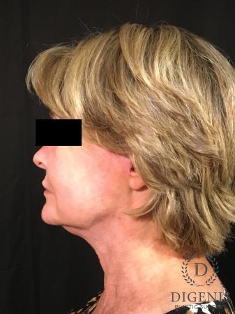 Digenis Refresh Lift: Patient 1 - After Image 5
