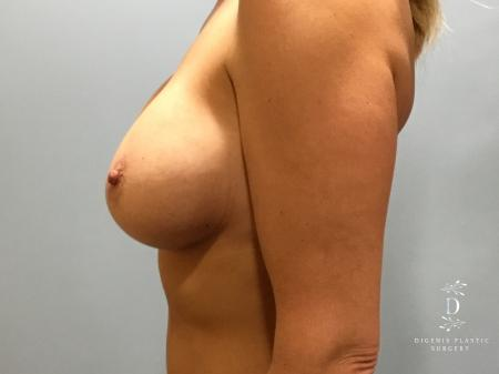 Breast Lift With Implants: Patient 5 - After Image 5