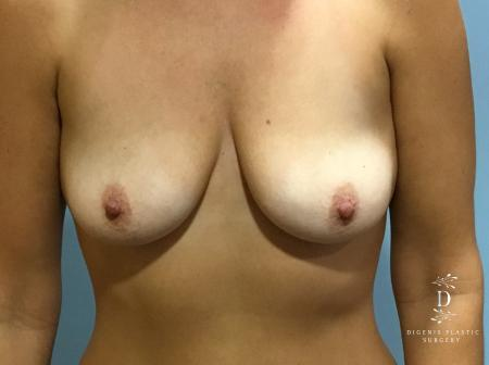 Breast Lift With Implants: Patient 5 - Before Image 1