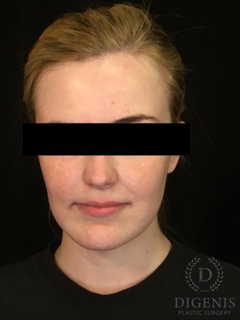 Digenis Refresh Lift: Patient 2 - After Image