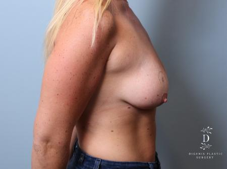 Breast Lift: Patient 7 - Before Image 3