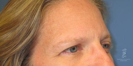 Eyelid Surgery: Patient 6 - Before Image 2