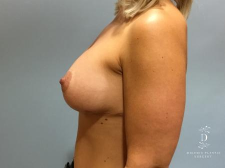 Breast Augmentation: Patient 12 - After Image 5