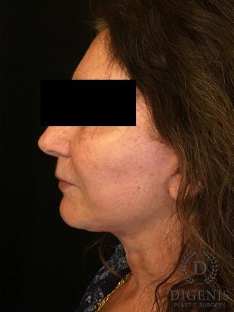 Facelift: Patient 4 - After Image 4