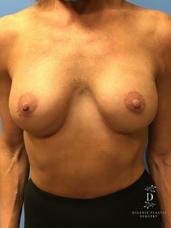 Breast Lift With Implants: Patient 3 - After Image 1