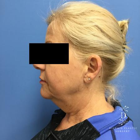 Facelift: Patient 12 - Before and After Image 5