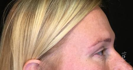 Eyelid Surgery: Patient 9 - After Image 2