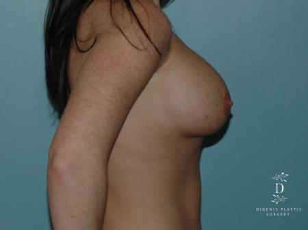 Breast Implant Exchange: Patient 1 - Before Image 2