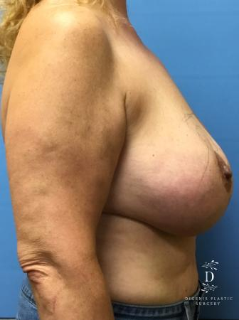 Breast Lift With Implants: Patient 4 - Before Image 3