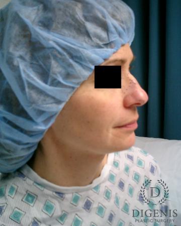 Rhinoplasty: Patient 5 - Before Image 3