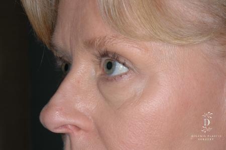 Eyelid Surgery: Patient 7 - Before Image 3