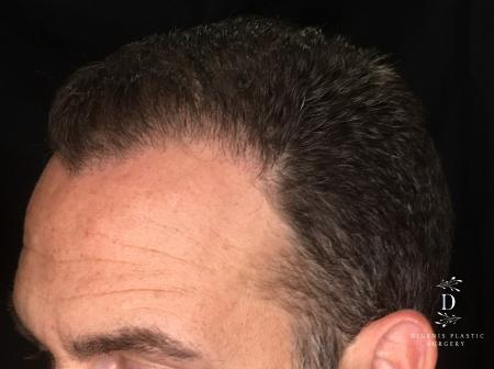 NeoGraft Hair Restoration: Patient 2 - After Image 1