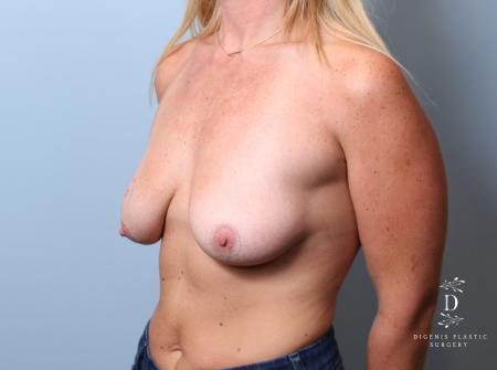 Breast Lift: Patient 7 - Before Image 4