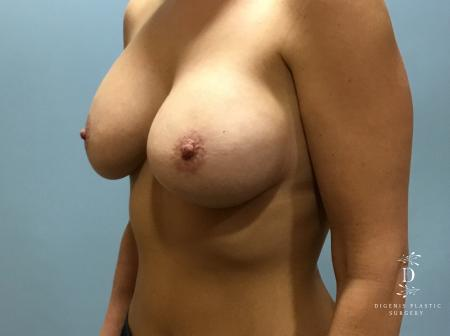 Breast Lift With Implants: Patient 5 - After Image 4