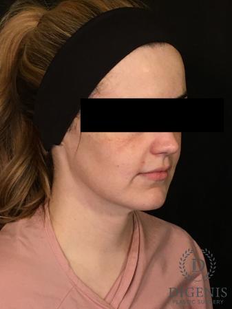 Digenis Refresh Lift: Patient 2 - Before Image 4