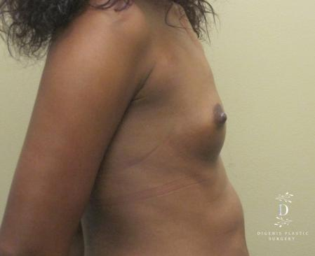 Breast Augmentation: Patient 14 - Before Image 2