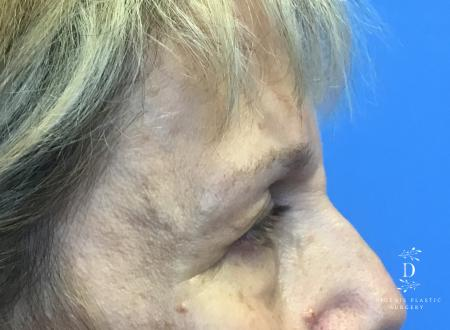 Eyelid Surgery: Patient 4 - Before Image 3