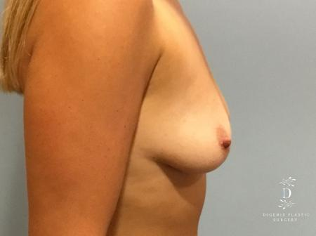 Breast Lift With Implants: Patient 5 - Before Image 3
