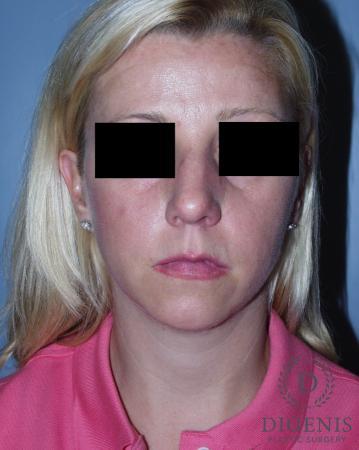 Rhinoplasty: Patient 3 - Before Image