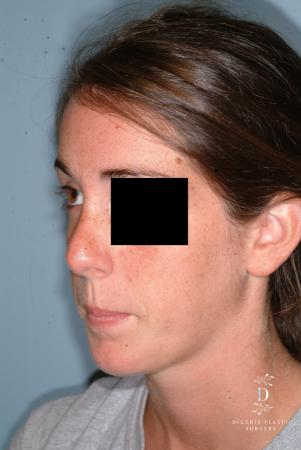 Rhinoplasty: Patient 6 - After Image 3