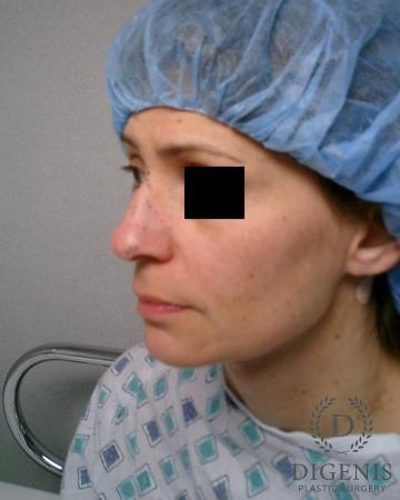 Rhinoplasty: Patient 5 - Before Image 4