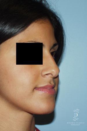 Rhinoplasty: Patient 8 - Before Image