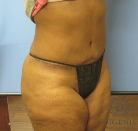 Abdominoplasty: Patient 4 - After Image 2