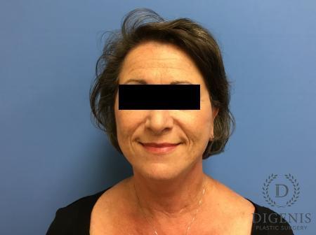 Facelift: Patient 15 - After Image 1