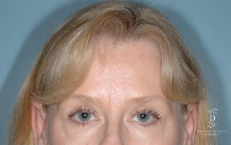 Eyelid Surgery: Patient 7 - Before Image