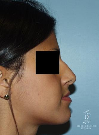 Rhinoplasty: Patient 8 - Before Image 2