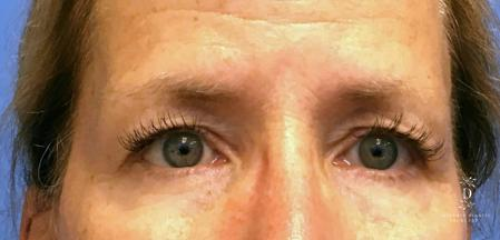 Eyelid Surgery: Patient 1 - Before Image