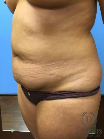 Abdominoplasty: Patient 1 - Before Image 4