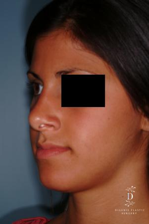 Rhinoplasty: Patient 8 - After Image 3
