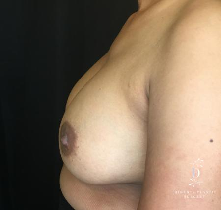 Breast Augmentation: Patient 14 - After Image 3_2
