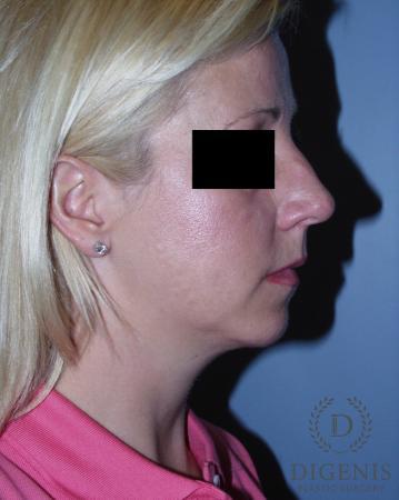 Rhinoplasty: Patient 3 - Before Image 3