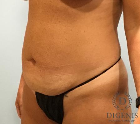 Abdominoplasty: Patient 3 - Before Image 4