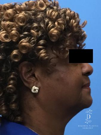 Facelift: Patient 8 - Before Image 3