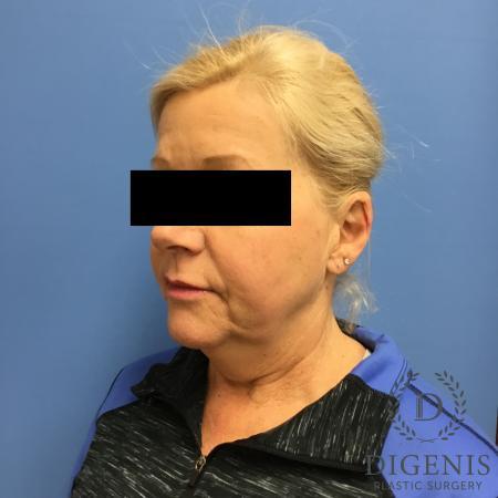 Facelift: Patient 12 - Before Image 4