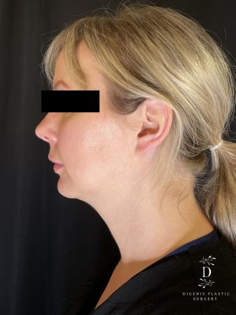 Injectables: Patient 3 - Before and After Image 2