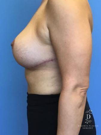 Breast Lift With Implants: Patient 2 - After Image 3