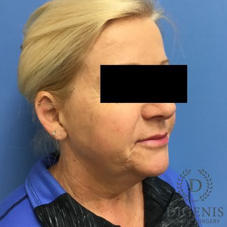 Facelift: Patient 12 - Before Image 2