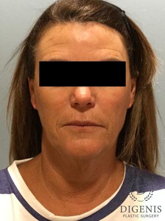 Facelift: Patient 11 - Before Image 1