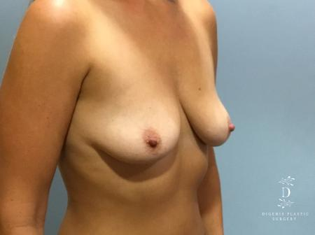 Breast Lift With Implants: Patient 5 - Before Image 2