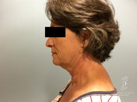 Facelift: Patient 15 - Before and After Image 5