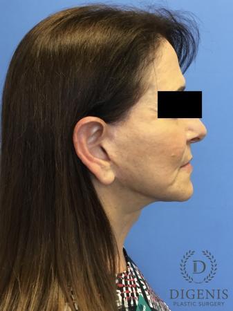 Facelift: Patient 6 - After Image 3
