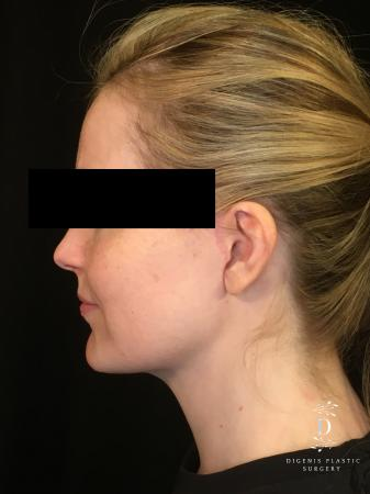 Digenis Refresh Lift: Patient 2 - After Image 3